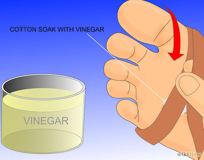 Get-Rid-of-a-Wart-at-the-Bottom-of-Your-Foot-Step-6