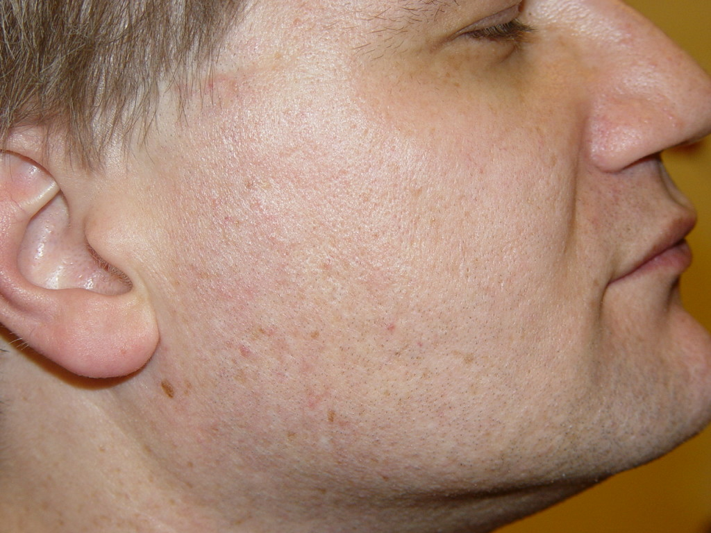 get-rid-of-acne-scars-16