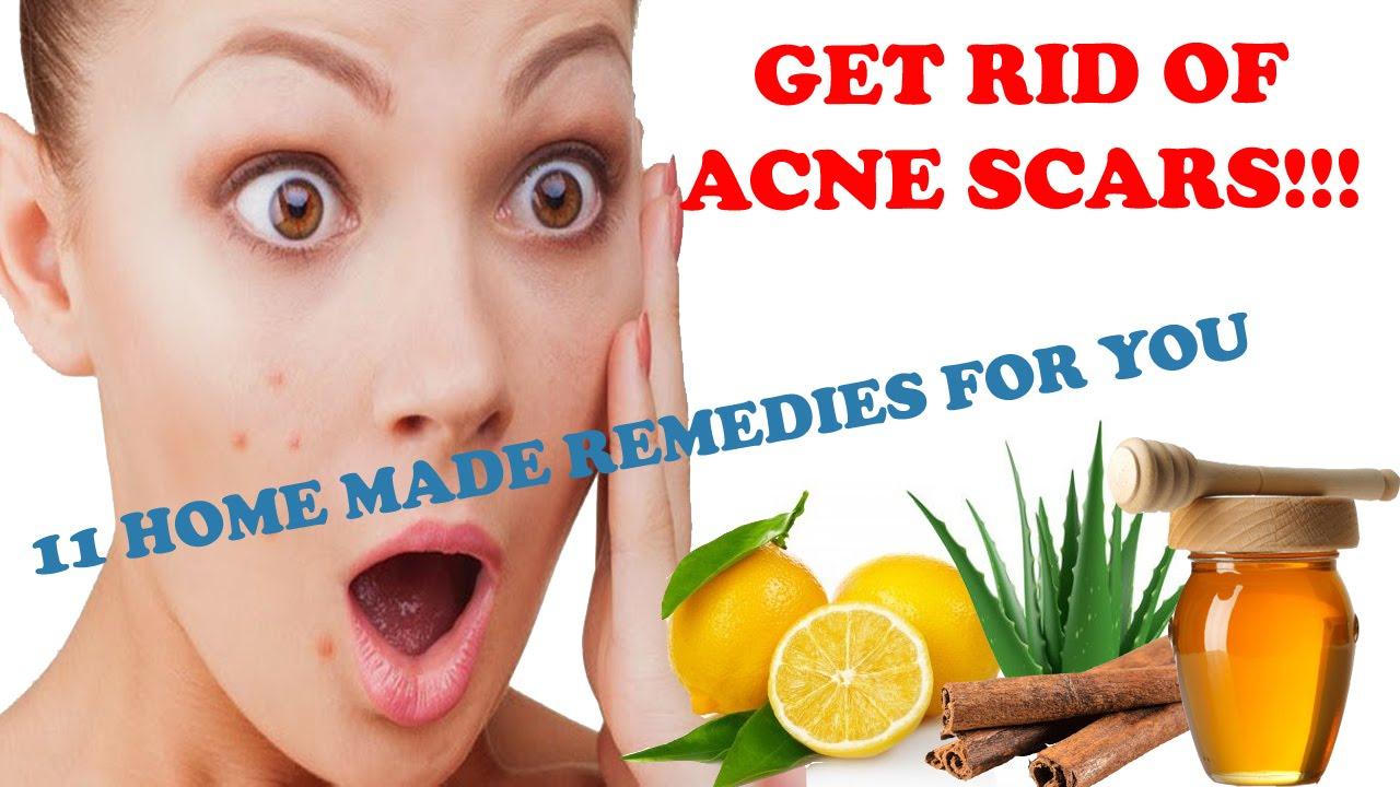 How to get rid of oily skin instantly – Homemade face packs for oily skin How to get rid of oily skin instantly – Homemade face packs for oily skin new picture