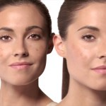 Solutions to Dark Spots: Home Remedies