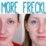 How to get rid of freckles on the skin